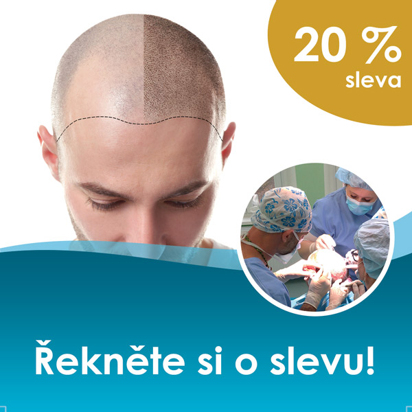 Sleva na transplantaci vlasů